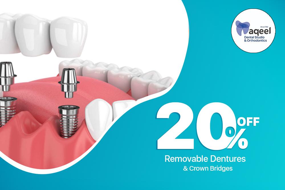 Dental Bridge Implant